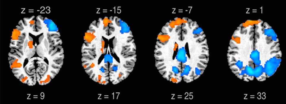 Neural Correlates of Lyrical Improvisation: An fMRI Study of Freestyle Rap